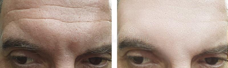 Den manliga framsidan rynkar borttagning som före och efter åldras behandlingeffekt för panna arkivbild