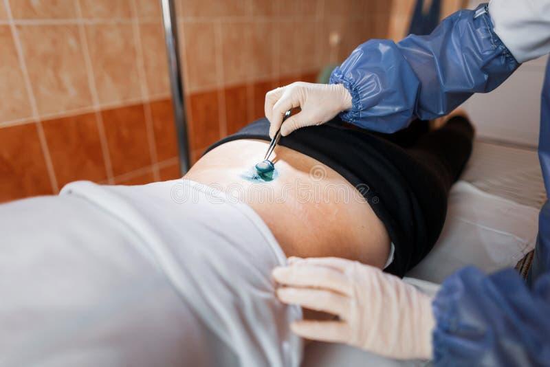 Den medicinska assistenten i en medicinsk likformig smörjer såret med en antibacterial lösning för att läka sår efter kirurgi royaltyfri foto