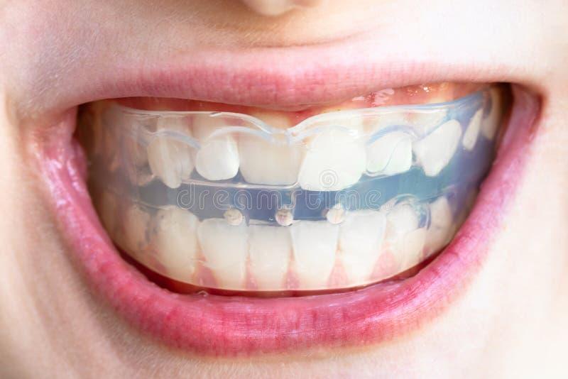 Den Orthodontic instruktören för korrigering av tänder biter royaltyfria bilder