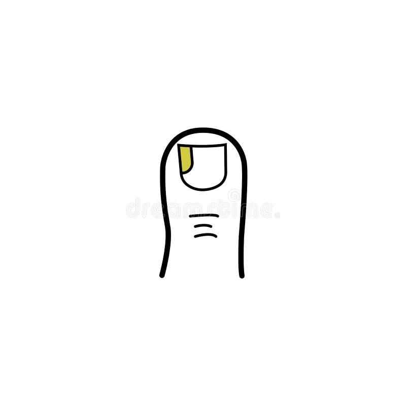 Den påverkade lårtån spikar svampen, det gula fingret spikar den medicinska symbolen för missfärgningsillustrationen royaltyfri illustrationer