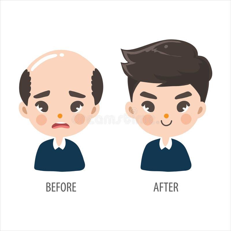 Den skalliga mannen utan förtroende och långa hårmän ser mer stilig vektor illustrationer