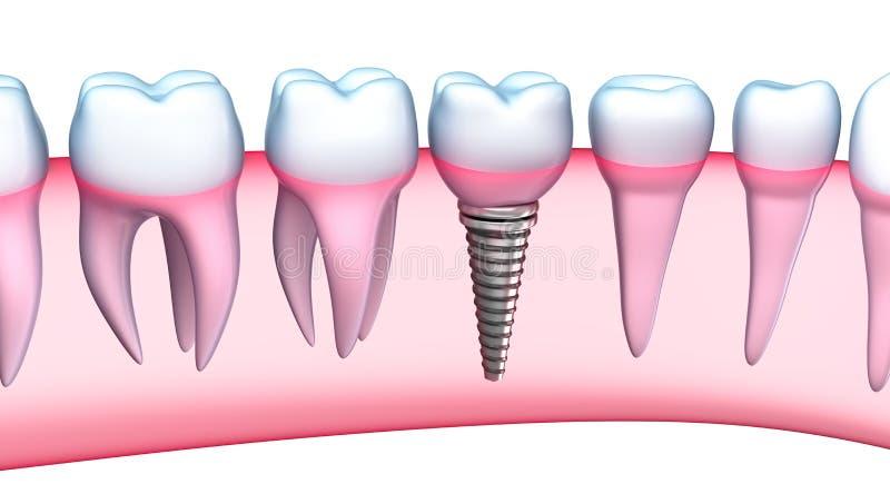 Den specificerade tand- implantatet beskådar. illustration 3D stock illustrationer