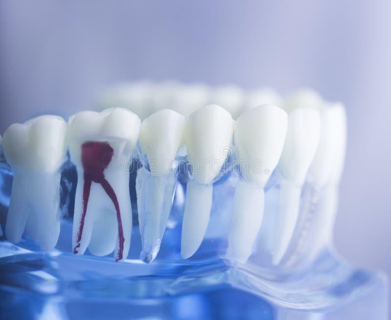Den tand- tanden rotar modellen royaltyfria bilder