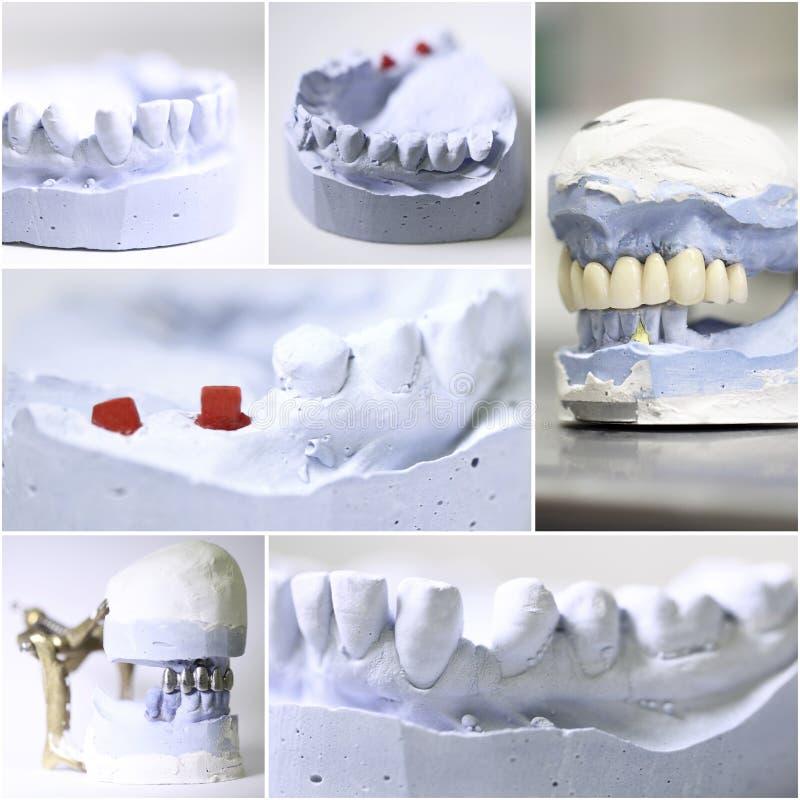 Den tand- tandläkaren anmärker collage royaltyfri fotografi