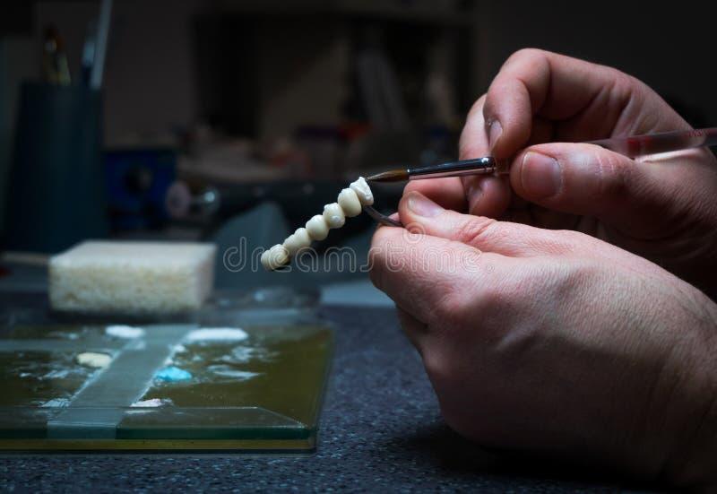 Den tand- teknikeren ska planlägga tand- kronor arkivbilder
