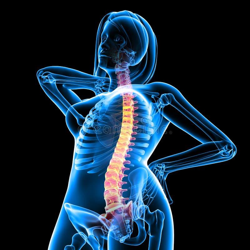 den tillbaka kvinnligframdelen smärtar skelett- sikt vektor illustrationer