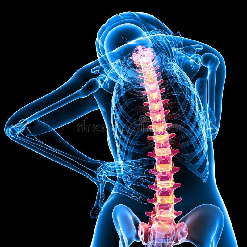 den tillbaka kvinnlign smärtar senare skelett- sikt stock illustrationer
