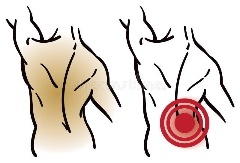Den tillbaka muskeln smärtar royaltyfri illustrationer