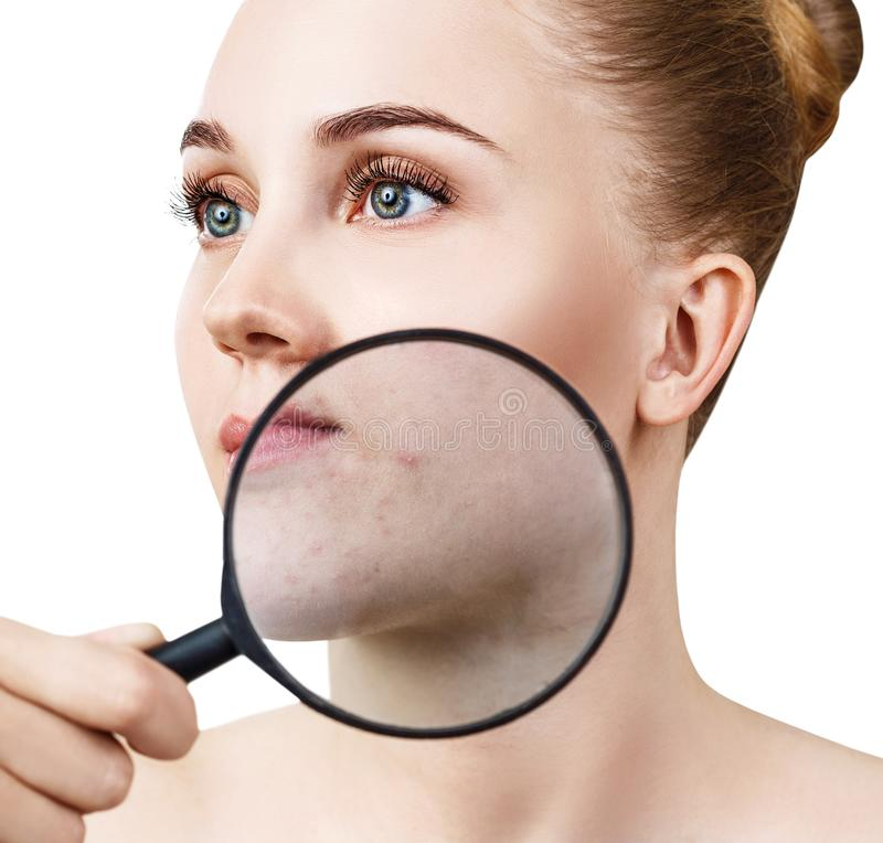 Den unga kvinnan med förstoringsglasshower flår med akne arkivbild