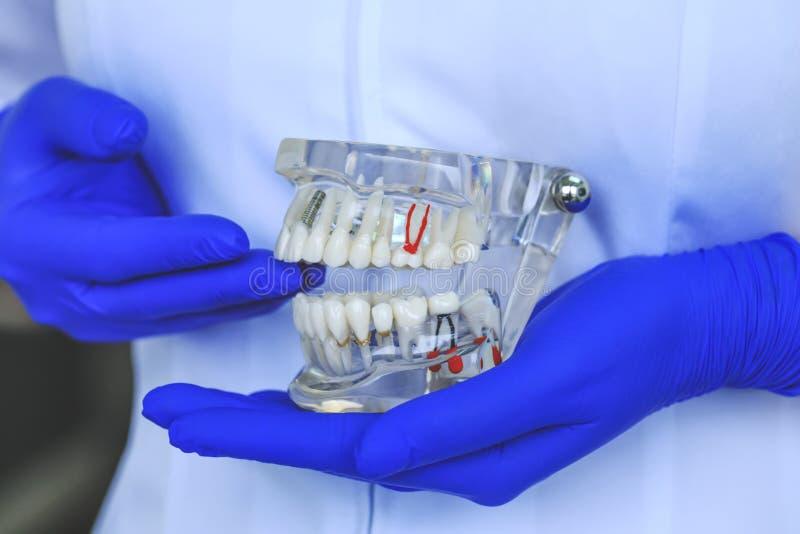 Den verkliga tand- tandmodellen som visar tänder, rotar, gummin, gummisjukdomen, tandförfall, metallimplantat och platta Tandläke arkivbild