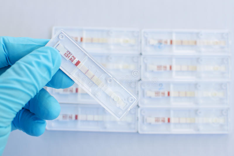 Dengue testing positive stock image