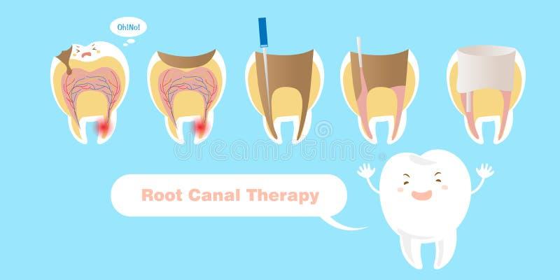 Dent avec la thérapie de canal radiculaire illustration libre de droits