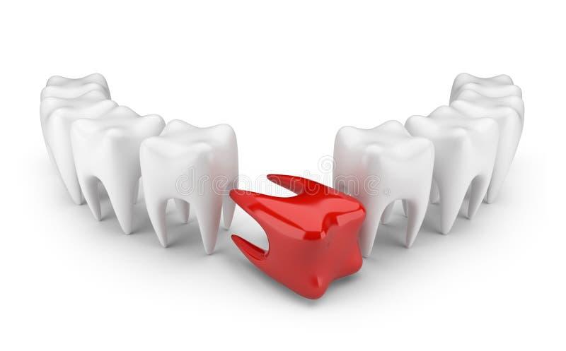 Dent malade 3D. Concept dentaire. D'isolement illustration de vecteur