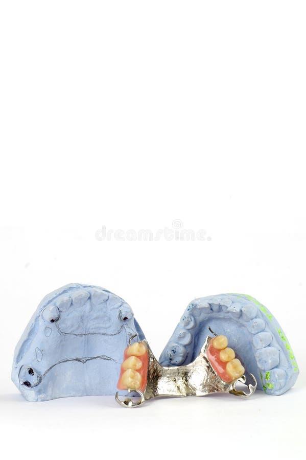 Dentadura parcial 5 foto de stock