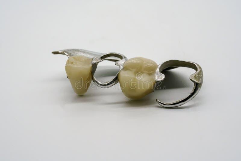Dentadura parcial desprendible del cromo en blanco foto de archivo