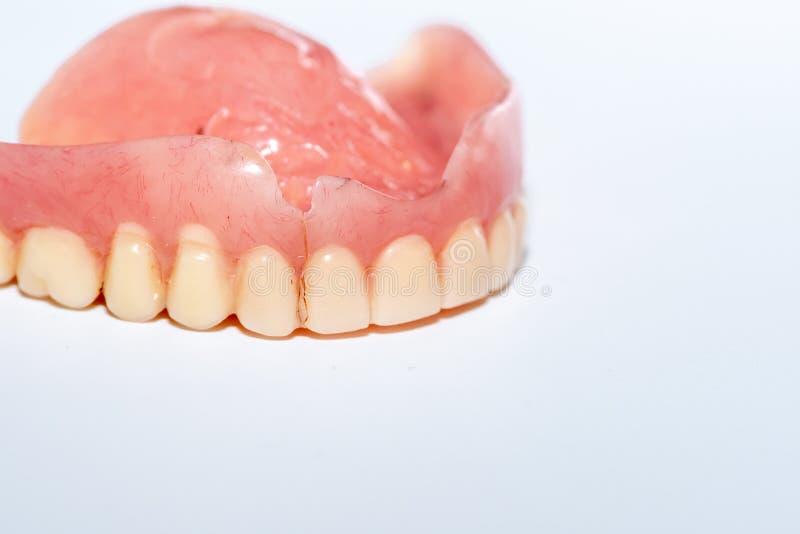 Dentadura vieja en un fondo blanco fotos de archivo libres de regalías