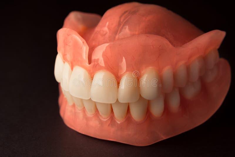 dentaduras Aislante en la prótesis de acrílico del fondo blanco del huma fotografía de archivo libre de regalías