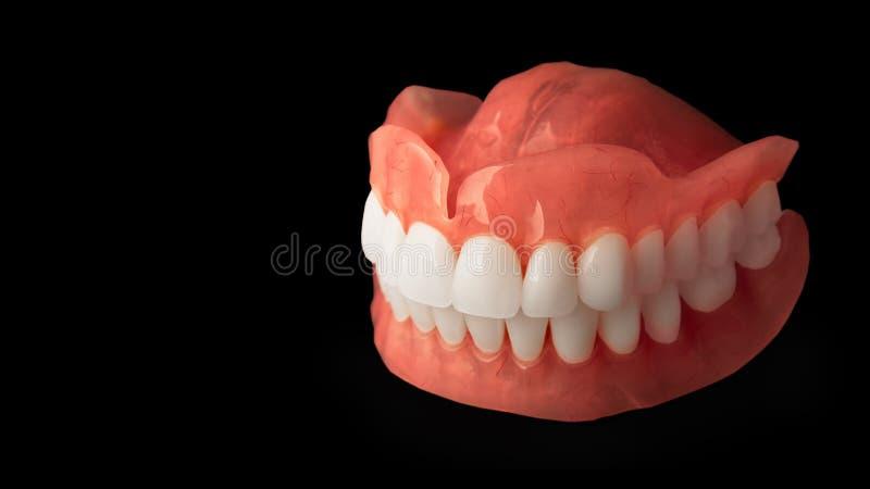 dentaduras Aislante en la prótesis de acrílico del fondo blanco del huma fotografía de archivo
