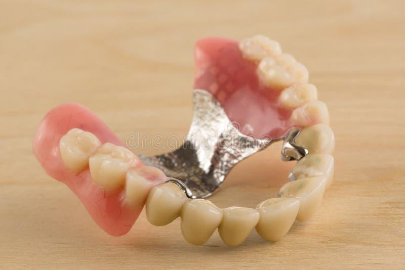 Dentaduras com coroas metal-cerâmicas imagens de stock royalty free