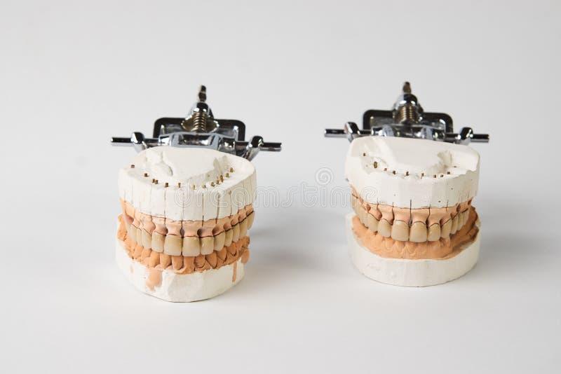 Dentaduras del yeso con los dientes de la porcelana aislados en el backgroun blanco imagenes de archivo