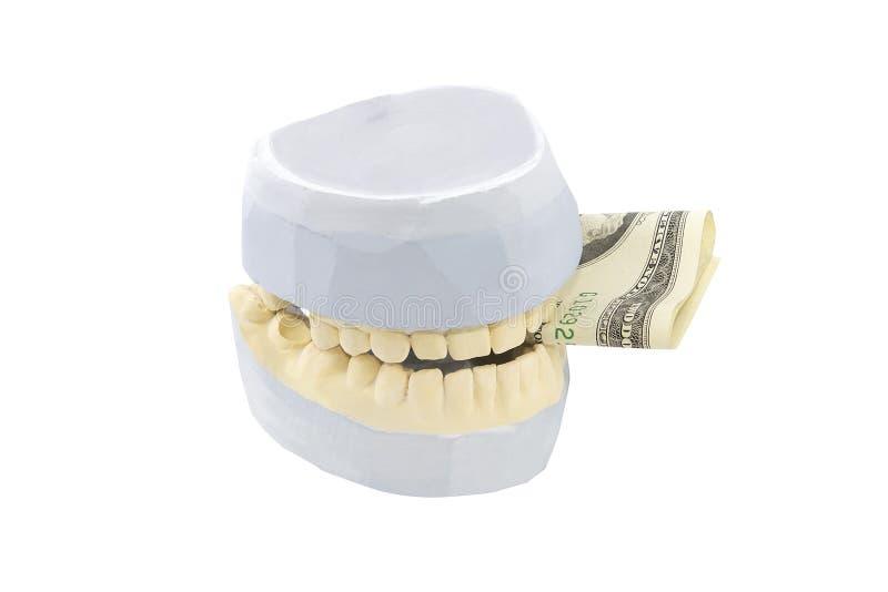 Dentaduras fantasmas dentales aisladas en blanco fotos de archivo