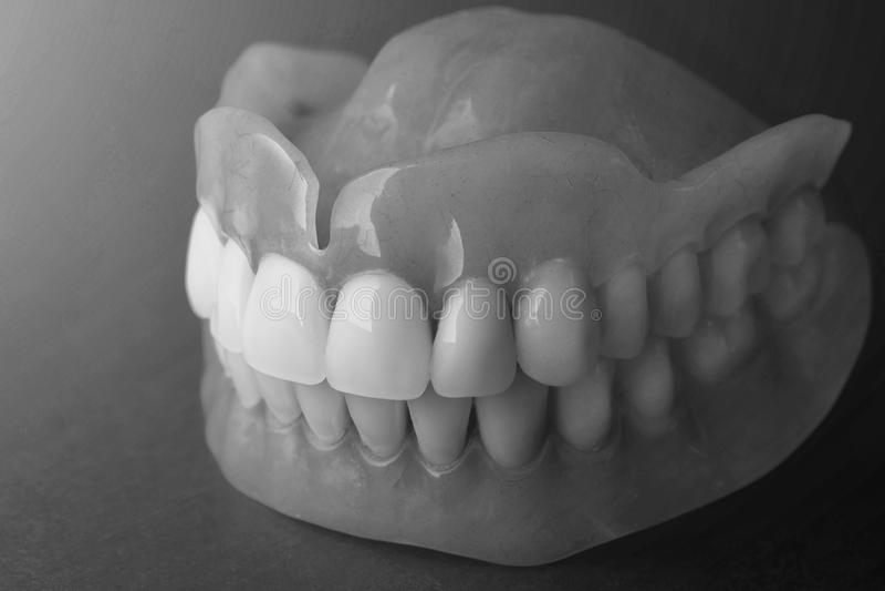 dentaduras Isolado na prótese acrílica do fundo branco do huma foto de stock