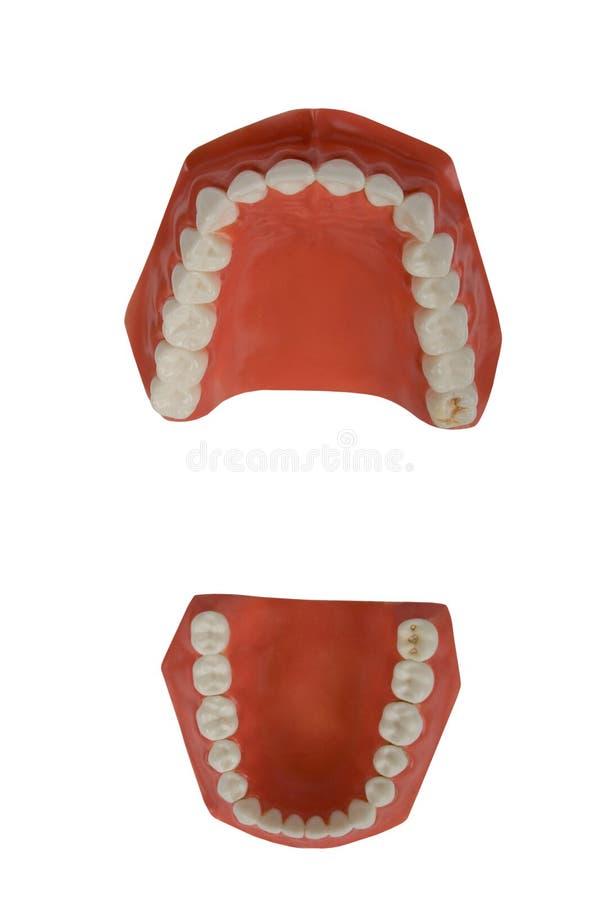 Dentaduras, prótese dental imagens de stock royalty free