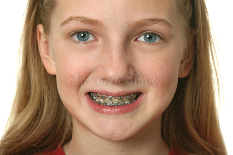 Download Dental Braces stock image. Image of face, isolated, braces - 13282845
