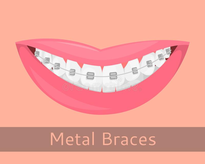 Dental braces, smiling lips in cartoon style . Smile with braces, illustration on the topic of stomatology royalty free illustration