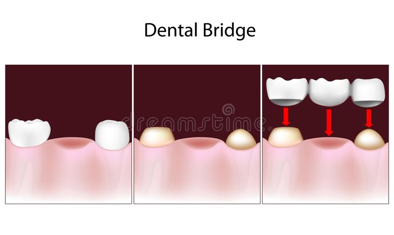 Dental bridge procedure vector illustration