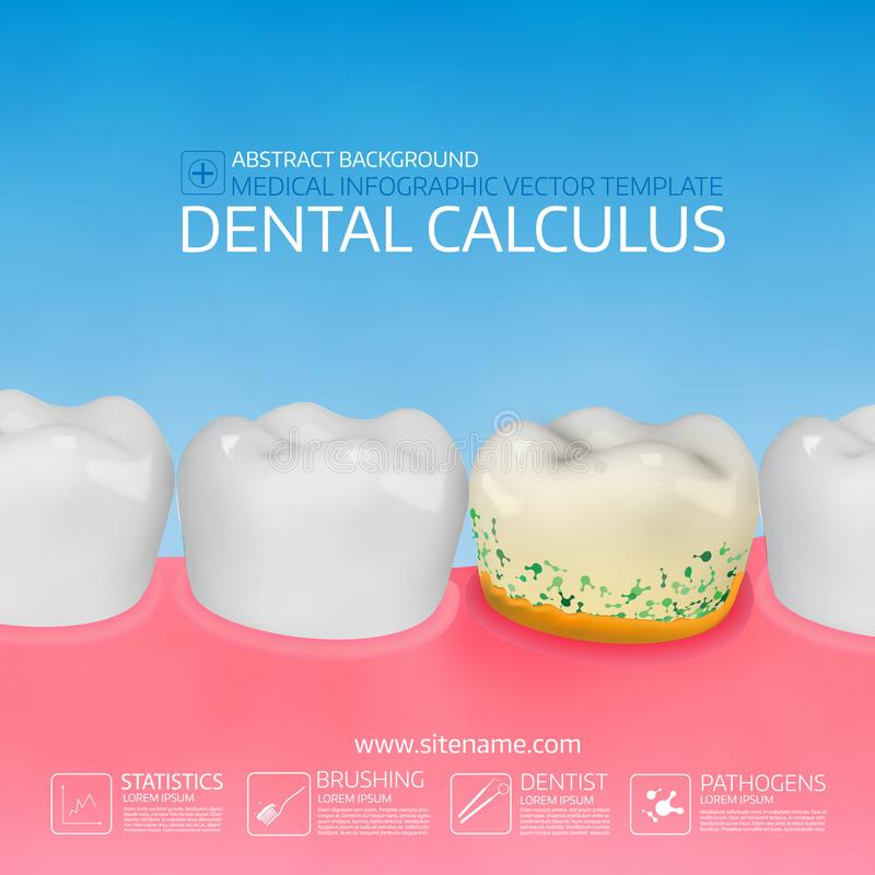Dental calculus with bacteria. Colorful vector illustration. Infographic template stock illustration
