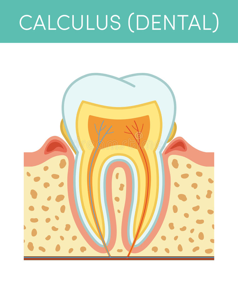 Dental calculus. Tooth diseases: dental calculus. Vector cartoon illustration of molar affected by tartar royalty free illustration