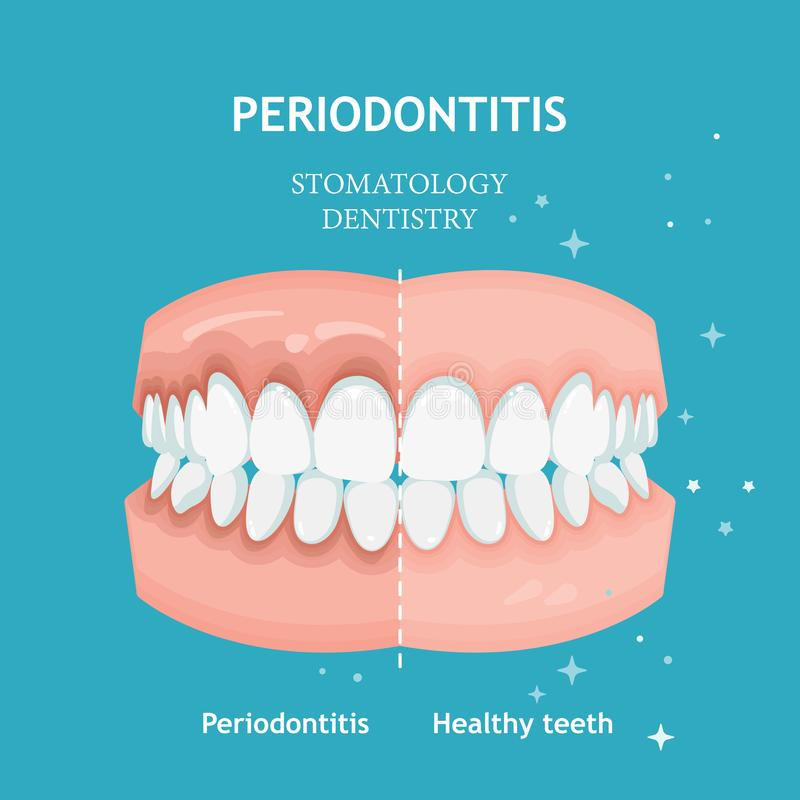 Periodontitis vector. Recession gums treatment. Stomatology dentistry concept vector illustration