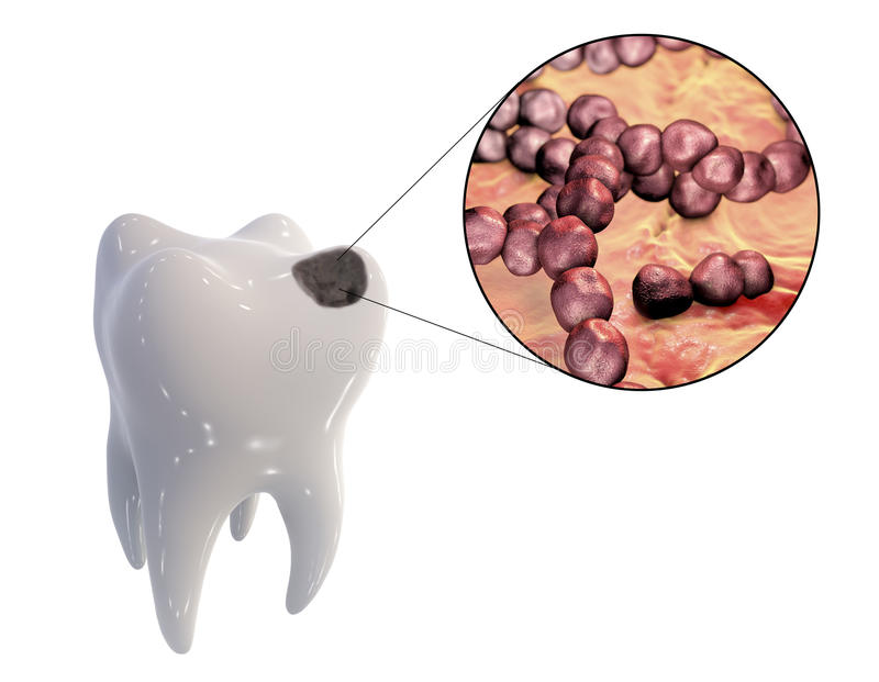 Dental caries and close-up view of microbes which cause caries vector illustration