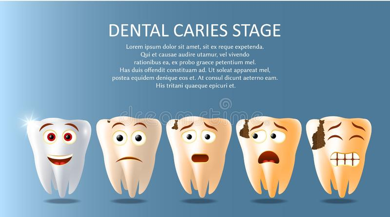 Dental caries stage vector poster banner template vector illustration