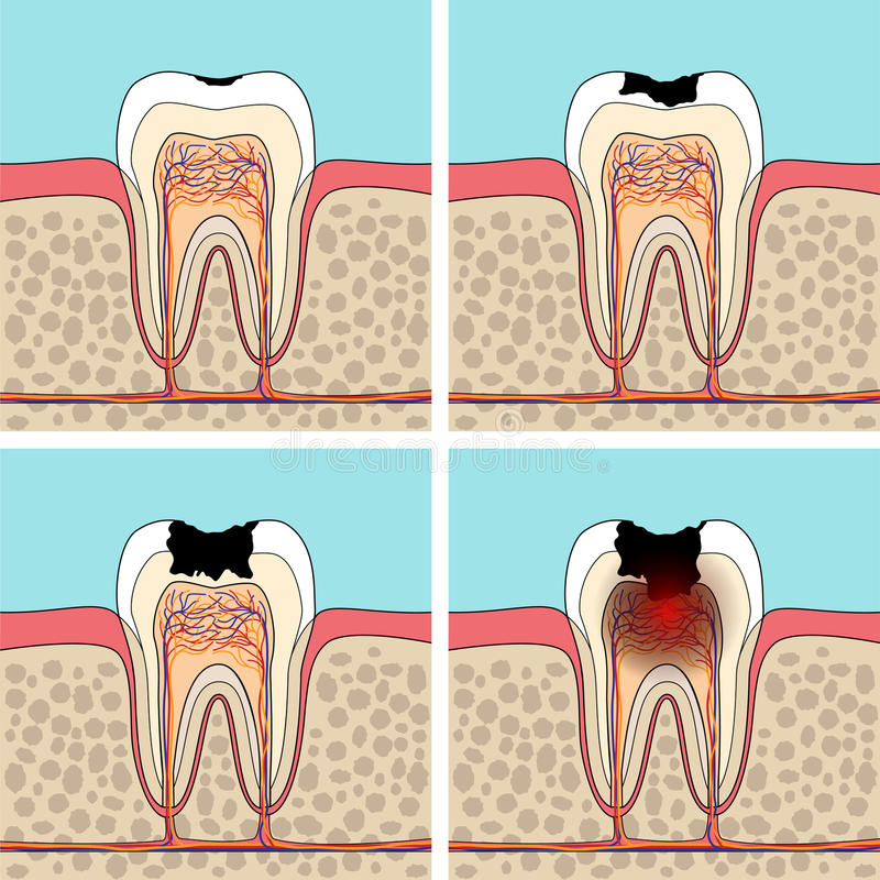 Dental caries stages. royalty free illustration