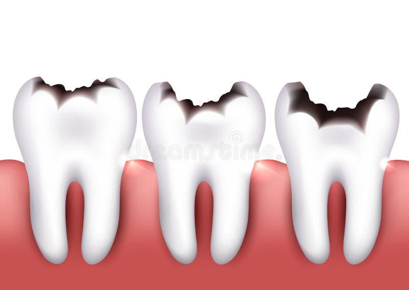 Dental caries royalty free illustration