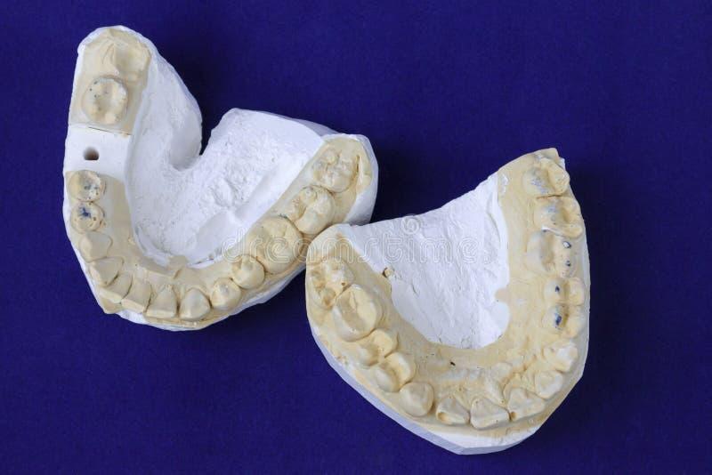 Dental casting gypsum model plaster cast stomatologic human jaws prothetic laboratory stock photography