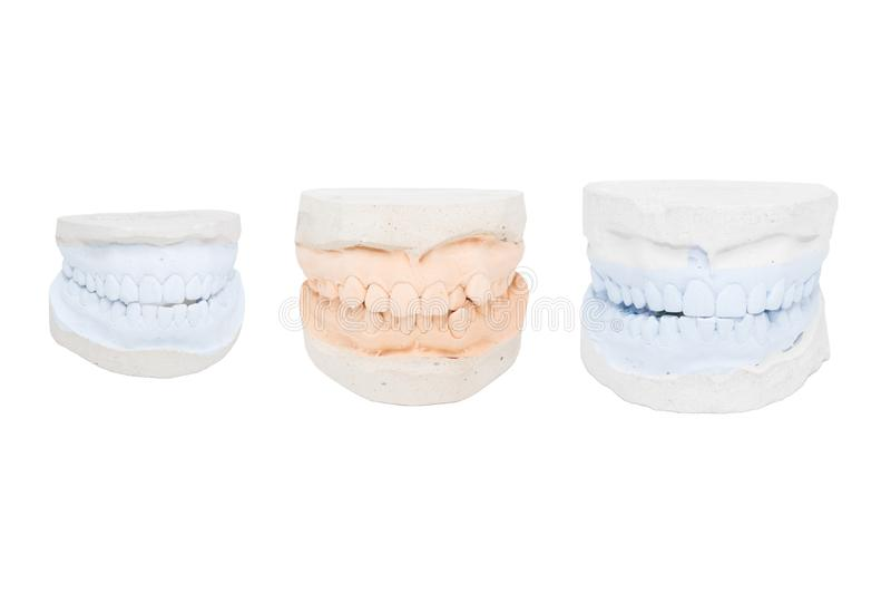 Dental casts from gypsum. Isolated royalty free stock photos