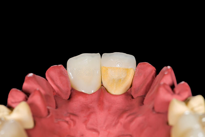 Dental ceramic crowns. On gypsum model on isolated black background stock photo