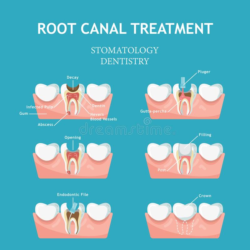 Dental concept. Dentistry and stomatology poster. Cavities and chipped. Concept in modern flat style royalty free illustration