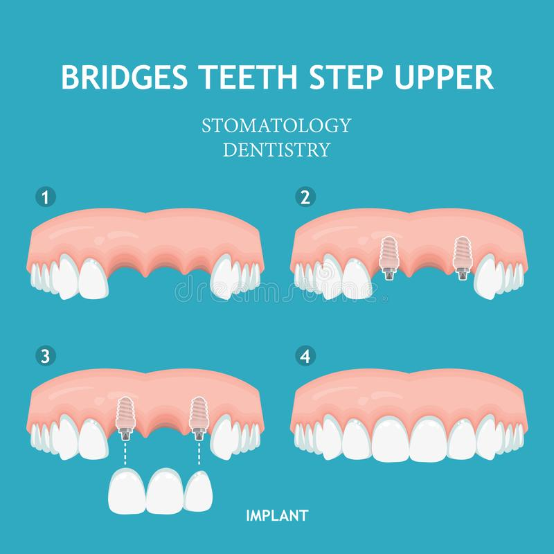 Dental concept. Dentistry and stomatology poster. Single implant. stock illustration