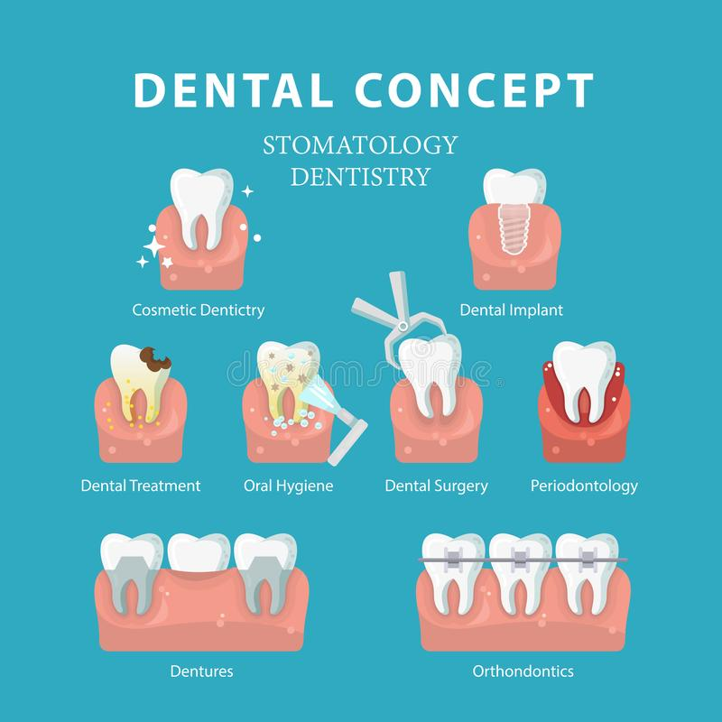 Dental concept. Vector poster in flat style. Dentistry and Stomatology. vector illustration