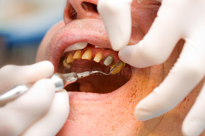 Dental cord placing in gingival sulcus stock image