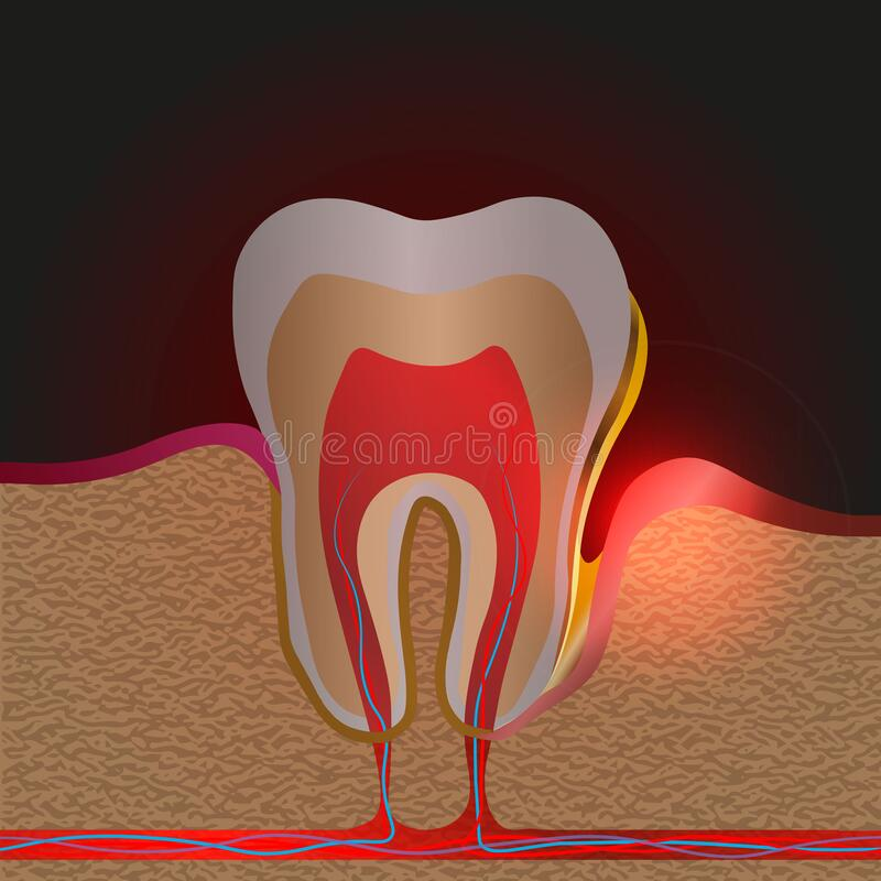 Free Dental Disease With Pain And Inflammation. Medical Illustration Of Tooth Root Inflammation, Gum Disease, Pus In The Gum Pocket, Royalty Free Stock Photography - 180037887