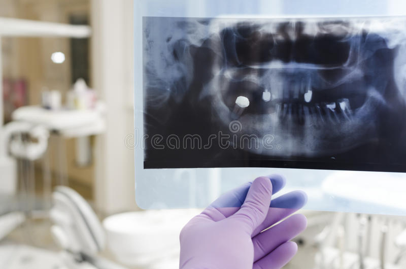 Dental. Doctor holding and looking at dental x-ray stock image