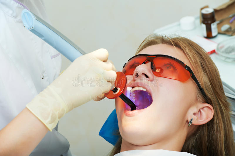 Dental filing of child tooth by ultraviolet light royalty free stock images