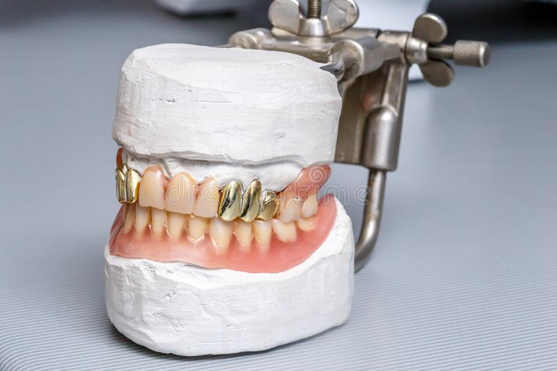 Dental gold teeth prosthesis, clay mold human gums model stock images