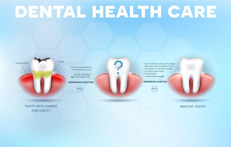 Dental health care tips. How to prevent tooth decay formation and acid attack detailed diagram vector illustration