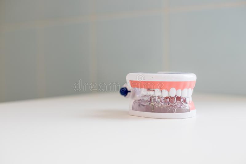 Dental hygienist checkup concept.Dental tooth dentistry student learning teaching model showing teeth, roots, gums, gum stock images